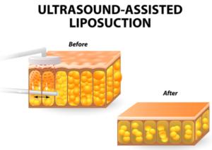 ultrasound-lipo-san-diego