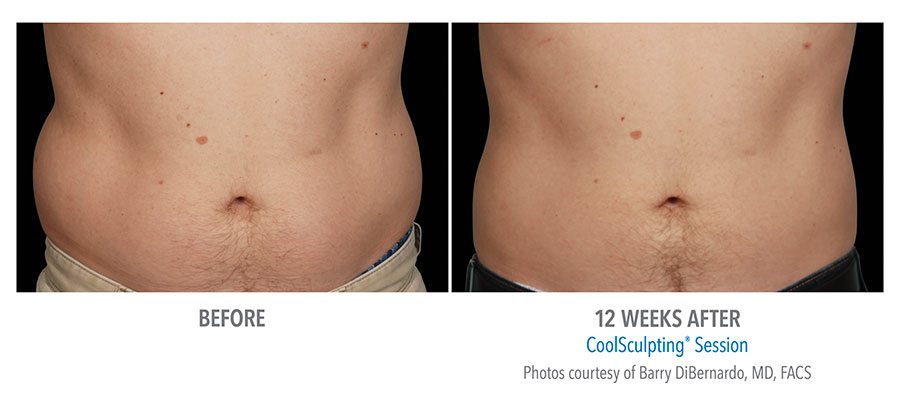 Your Guide To Coolsculpting Treatment Areas Freeze The Fat