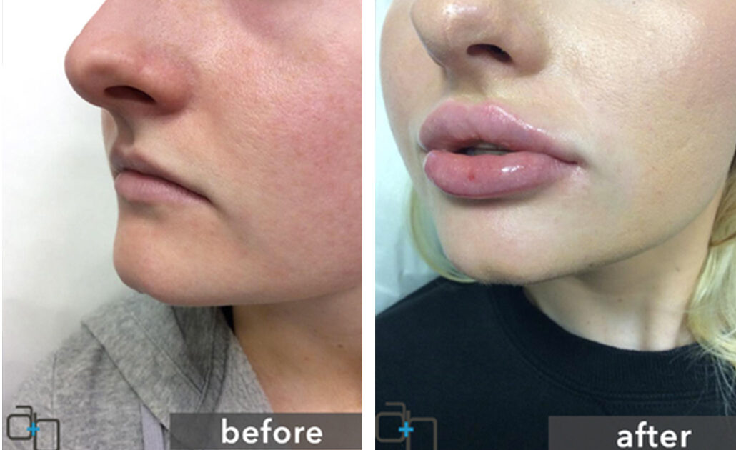 Lip Injections San Diego | Best Lip Filler Treatments
