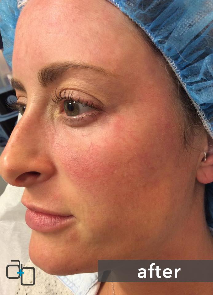 Dermal Filler Specialists San Diego, Hillcrest | Reduce Wrinkles