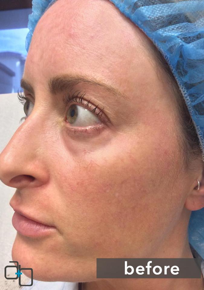 Dermal Filler Specialists San Diego, Hillcrest   Reduce Wrinkles